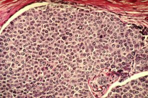 Early Periods Linked to Breast Cancer